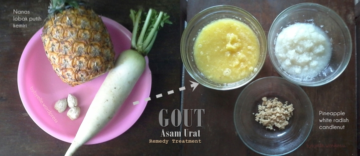 Gout Asam Urat Treatment Remedy before_after bybyelle-wordpress